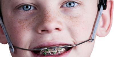 Image result for headgear orthodontics